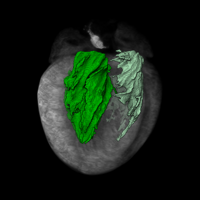 <b>Imactiv-3D has developed an imaging and image processing process for cardiac ventricular volume measurement in ex-vivo mice.</b>